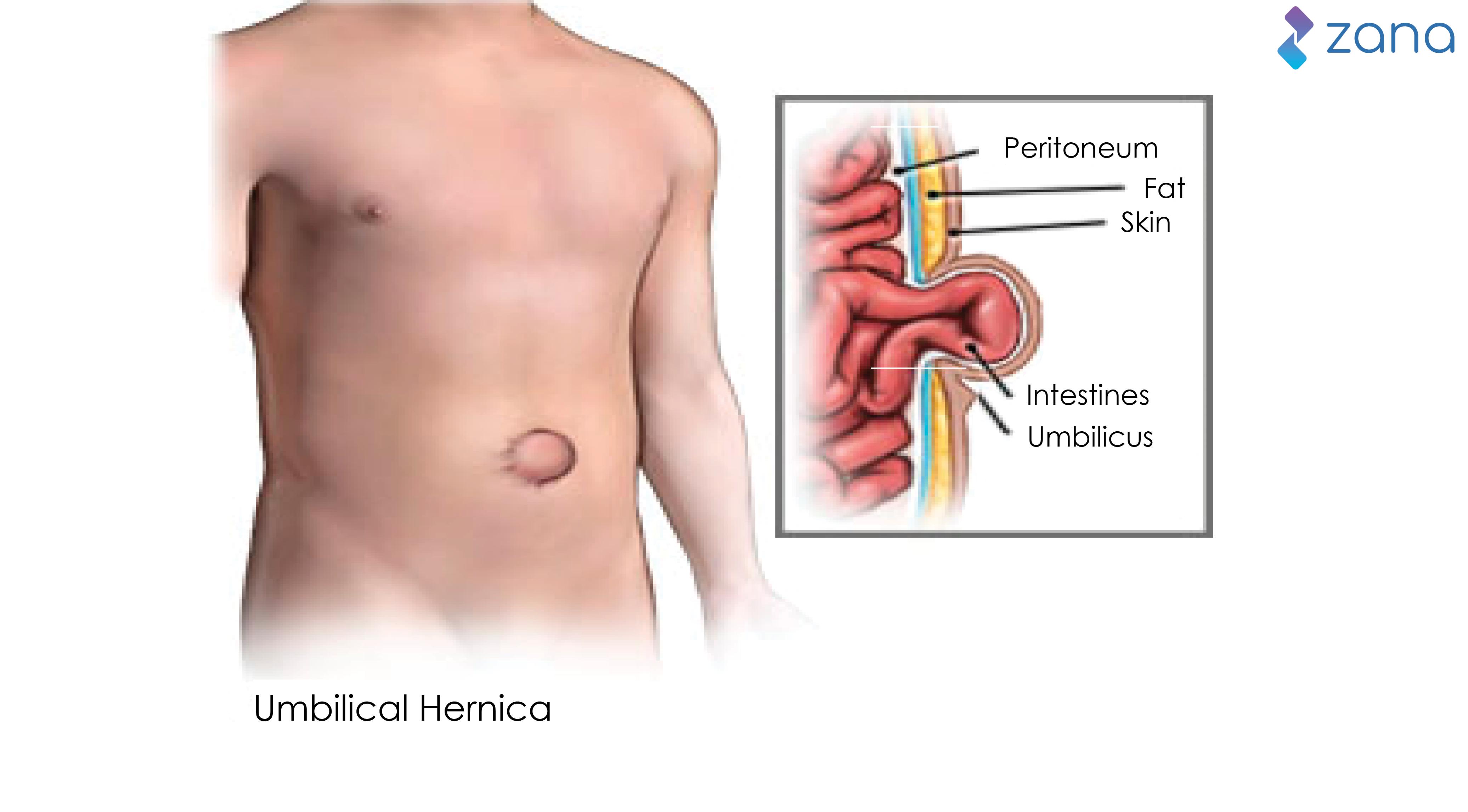 Encantador Anatomy Of Umbilical Hernia Viñeta - Anatomía de Las ...