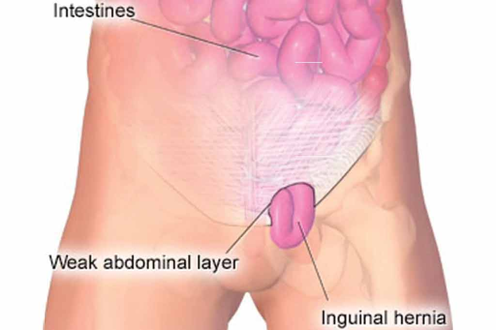 Inguinal Hernia Introduction