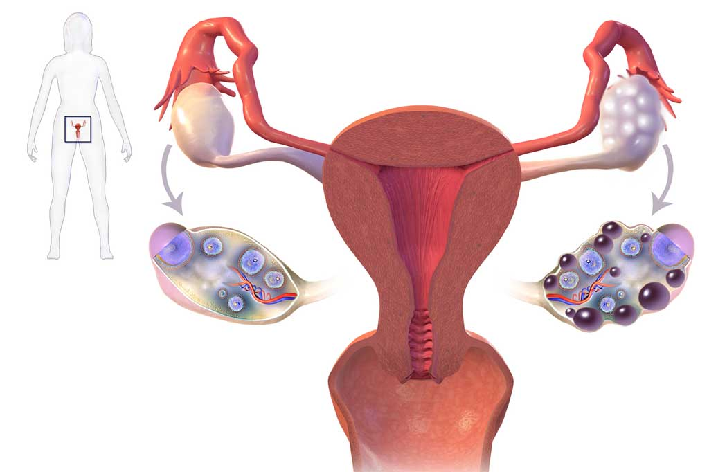 Researchers investigate the causes of polycystic ovary syndrome