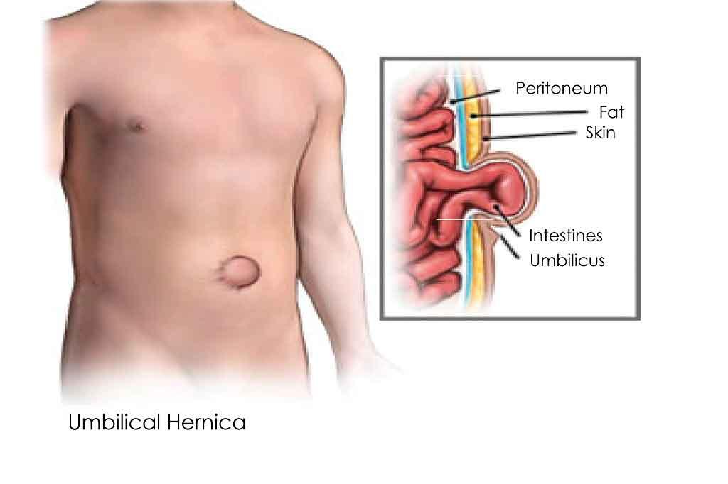 hernia,